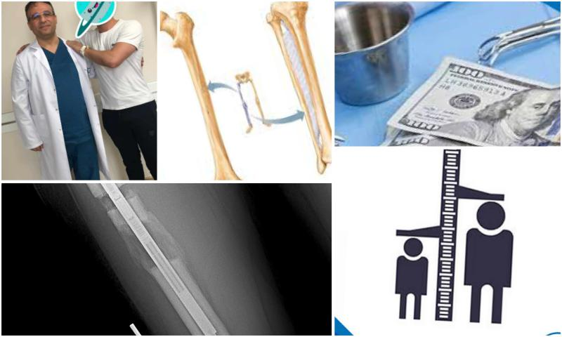 Uzuv Uzatma Ameliyatı-Limb Lengthening Surgery