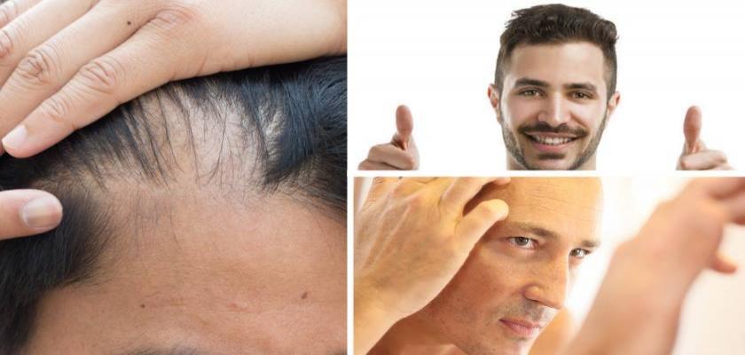 Stres Nedeni ile Ortaya Çıkan Saç Dökülmesi Sorunsalı