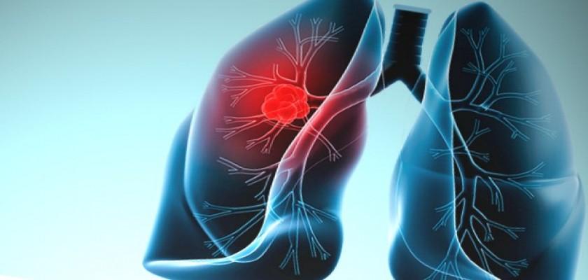 Akciğer Kanseri Nedir, Neden Olur?