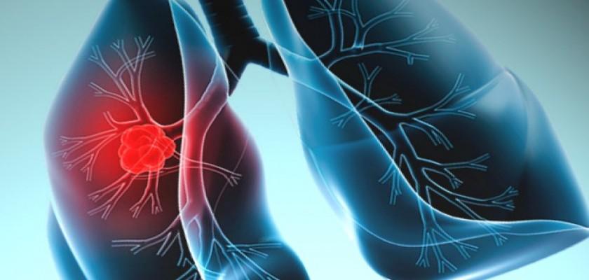 Akciğer Kanserinin Nedenleri Nedir?